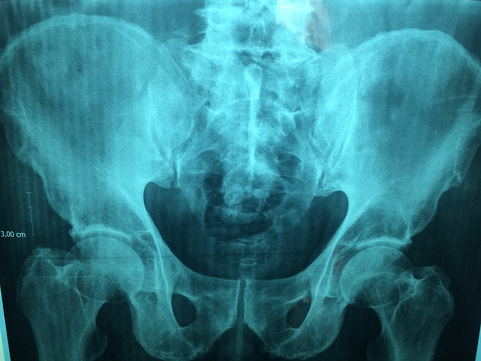 Medical Device Injuries Blog Archives - Tomes Law Firm, PC